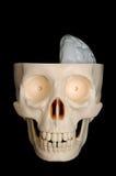 Hälfte-Brained Schädel Stockbilder