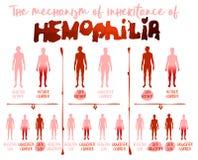 Hämophilie Infographics-Bild stockfoto