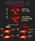 Hämophilie Infographics-Bild stockbilder