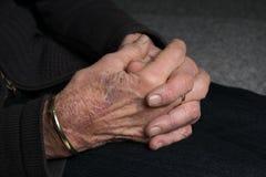 Hände alter Dame mit Arthritis stockfotografie
