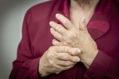 Hände der rheumatoiden Arthritis Lizenzfreie Stockbilder