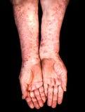 Hände mit Psoriasis Stockbilder
