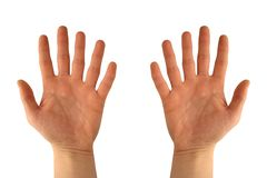 Hände mit sechs Fingern Stockfoto