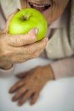 Hände und Früchte der rheumatoiden Arthritis Stockfoto