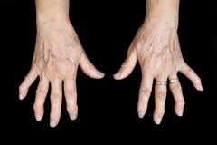 Händer av den gammala kvinnan Arkivbilder