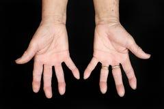 Händer av den höga kvinnan Fotografering för Bildbyråer