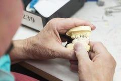 Händer av teknikeren som arbetar på 3D, skrivev ut formen för tand- implantat Arkivbild