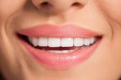 härlig leendekvinna vita tänder arkivbild