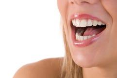 härlig skratta tandkvinna Arkivbild