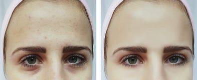 Härlig ung flickaakne, blåmärken under tillvägagångssätten för ögon före och efter royaltyfria foton
