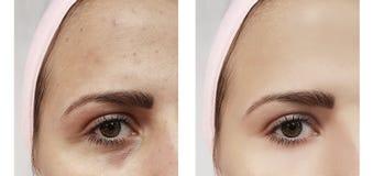 Härlig ung flickaakne, blåmärken under tillvägagångssätten för ögonborttagningsterapi före och efter fotografering för bildbyråer