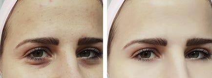 Härlig ung flickaakne, blåmärken under tillvägagångssätten för ögonterapi före och efter arkivfoto
