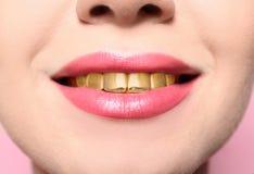 Härlig ung kvinna med guld- tänder royaltyfri fotografi