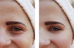 Härliga flickakanter ökar skillnaden som före och efter hydratiserar tillvägagångssätt royaltyfri foto