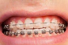 Härligt leende för man` s med orthodontic fall royaltyfria foton