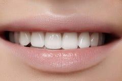 Härligt leende med blekmedeltänder Tand- foto Makrocloseup av den perfekta kvinnliga munnen, lipscarerutine Royaltyfri Foto