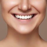 Härligt leende med blekmedeltänder Tand- foto Makrocloseup av den perfekta kvinnliga munnen, lipscarerutine arkivbild