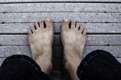 Hässliche Füße Stockfoto
