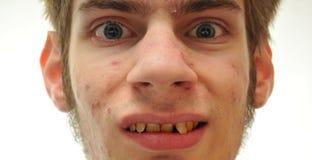 Hässlicher Mann, der mit den gekrümmten gelben Zähnen lächelt Stockbilder