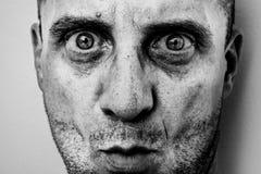 Hässliches Mannporträt mit unrasiertem Gesicht, schmutzige Haut, große Nase mit schwarzen Flecken, schreckliche große Augen lizenzfreie stockbilder