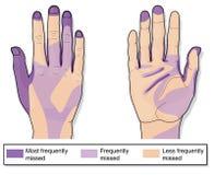 Häufig fehlende Bereiche, wenn Hände gesäubert werden lizenzfreie abbildung