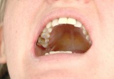Hålet i tanden och behandlingen av tand- kanaler Behandling av tandlossning i den tand- kliniken fotografering för bildbyråer