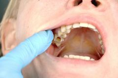 Hålet i tanden och behandlingen av tand- kanaler Behandling av tandlossning i den tand- kliniken royaltyfri fotografi