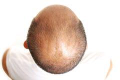 hår gör tunnare arkivfoton