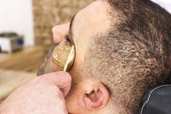 Hårborttagning Mans framsida som sockrar epilation i Turkiet royaltyfri fotografi
