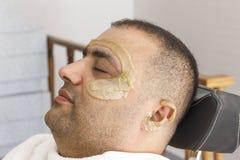 Hårborttagning Mans framsida som sockrar epilation i Turkiet fotografering för bildbyråer