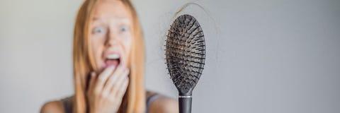 Hårförlust i kvinnabegrepp Mycket borttappat hår på hårkamBANRET, LÅNGT FORMAT fotografering för bildbyråer