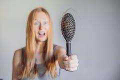 Hårförlust i kvinnabegrepp Mycket borttappat hår på hårkammen royaltyfria bilder