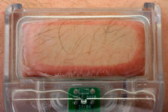 hårlaser-borttagning Fotografering för Bildbyråer