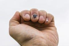 Hématome Subungual sur le doigt moyen de la main Images stock