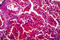 Hémorragie pulmonaire aiguë photos stock