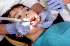 Hög kvinna på den tand- operationen arkivbild