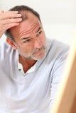 Hög man som ser hans hårförlust som angås Arkivbilder