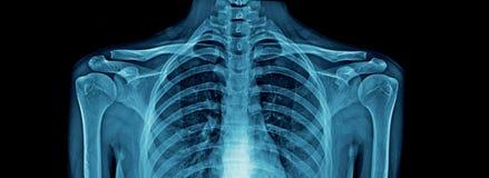 Högkvalitativ bröstkorgröntgenstråle och skuldra och nyckelben royaltyfri bild