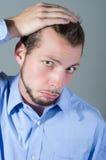 Hübscher junger Mann gesorgt um Haarausfall Stockfotografie