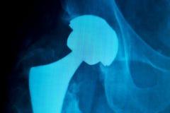 Hüftenersatzimplantat Röntgenstrahlscan Stockfotografie