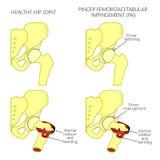 Hüftgelenk problem_Pincer femoroacetabular Zusammenstoß mit secti Stockfotos