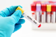 H1N1 test. Blood sample for H1N1 influenza virus test Stock Photos