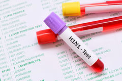 H1N1 test. Blood sample for H1N1 influenza virus test Royalty Free Stock Photo