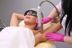 Ha underarm epilation för laser-hårborttagning Royaltyfria Foton