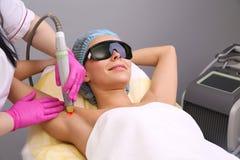 Ha underarm epilation för laser-hårborttagning Arkivfoton