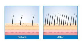 Haar auf Kopfhaut vorher und nachher des Behandlungshaarausfalls lizenzfreie abbildung