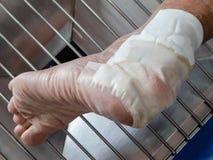 Habillage de la blessure de pieds photo libre de droits