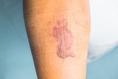 Habillage sur la jambe Image stock