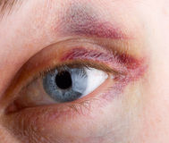 Haematoma on eye Royalty Free Stock Images