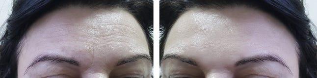 Haga frente a las arrugas mayores de la frente de la mujer antes y después del colágeno cosmético de los procedimientos fotografía de archivo